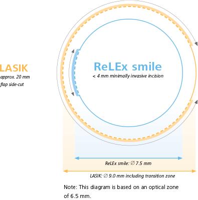 Image Of Relex Smile