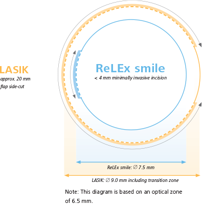 Image Of Relex Smile